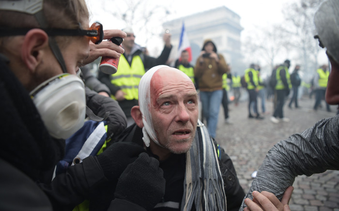 """FILE: An injured Yellow vest (Gilet jaune) protestor looks on on the Champs Elysees in Paris, during a protest against rising oil prices and living costs.  Police fired tear gas and water cannon on November 24 in central Paris against """"yellow vest"""" protesters demanding French President roll back tax hikes on motor fuel. Picture: AFP."""