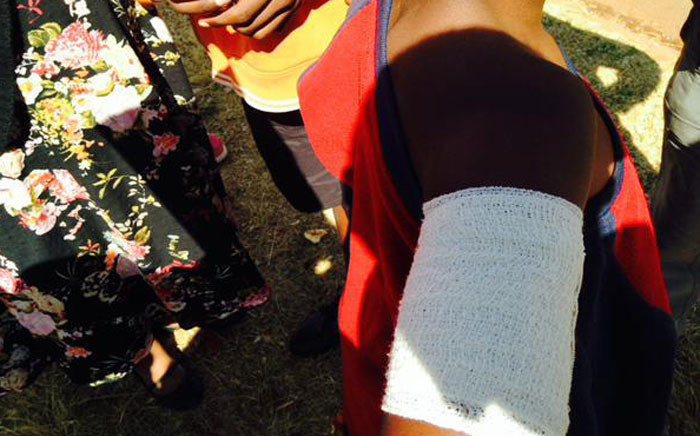 This 10-year-old survived a deadly fire in Orange Farm which claimed five lives. Picture: Masego Rahlaga/EWN