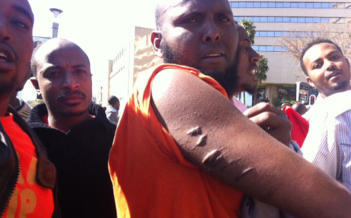 Ethiopian man allegedly assaulted by government forces in his country. Picture: Rahima Essop/EWN