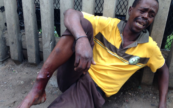 A man grimaces in pain after being shot with a rubber bullet in the Durban city centre because of a standoff between foreign shop owners and locals in Durban on 14 April 2015. Picture: Vumani Mkhize/EWN.