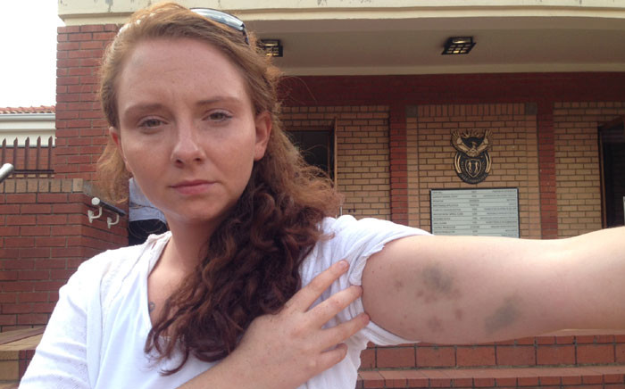 Lana Stander claims she was assaulted at a Johannesburg police station on 14 February 2015. Picture: Vumani Mkhize/EWN