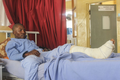 3 July 2021: Veli Dlamini is from Siphocosini. He fractured his knee on 29 June at Ezulwini trying to run away from shots fired by security forces. Picture: Magnificent Mndebele/New Frame