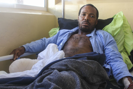 3 July 2021: Madzabudzabu Kunene, a former leader of the Swaziland Youth Congress, the youth wing of the People's United Democratic Movement, had his leg amputated after he was shot by eSwatini's armed forces during the protests.Picture: Magnificent Mndebele/New Frame