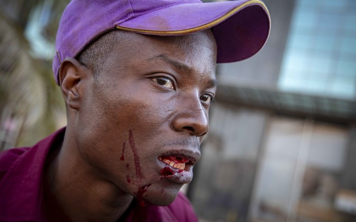An injured man sits on the ground amid election protests in Zimbabwe on 1 August 2018. Picture: Thomas Holder/EWN.