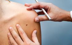 'We shouldn't be dying from skin cancer' - protect your skin this summer