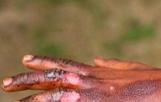 Mzansi's first skin banking program launches