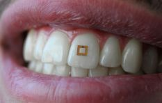 Technobyte: Tooth sensor helps you watch what you eat
