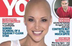 "YOU Magazine's ""bald"" response to public outcry"
