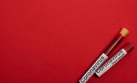 coronavirus covid-19 test 123rf 123rfcoronavirus 123rfcovid-19 123rflifestyle